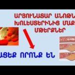 Продукты которые очищают кровеносные сосуды от холестерина