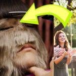 Девушка с синдромом оборотня впервые состригла волосы с лица. Потому что выходит замуж!